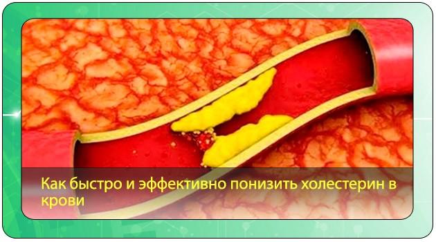 Холестерин в кровеносных сосудах