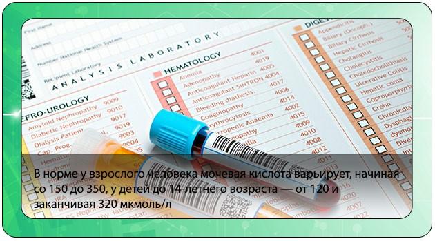 Определение мочевой кислоты