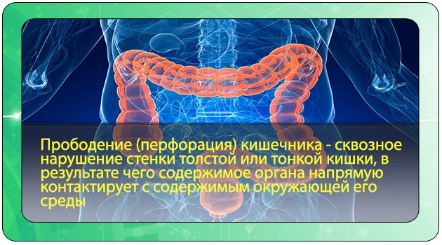 Перфорация стенки кишечника