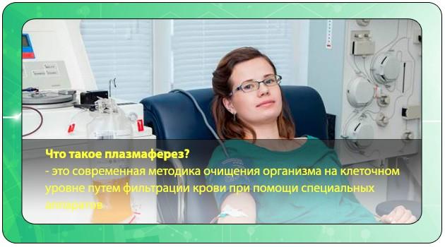 Плазмаферез