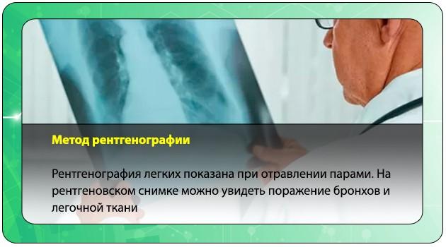 Метод рентгенографии
