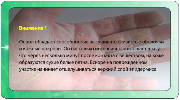 Отшелушивание кожи рук