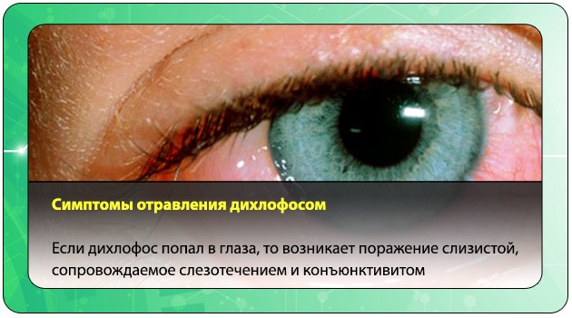 Поражение слизистой глаза