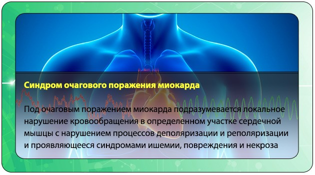 Очаговое поражение миокарда