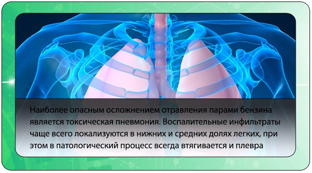Токсическая пневмония