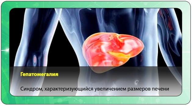 Гепатомегалия