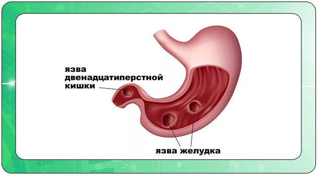 Язва желудка, двенадцатиперстной кишки