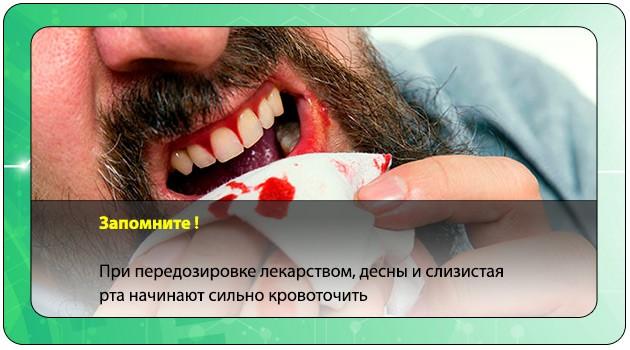 Кровотечение из десен