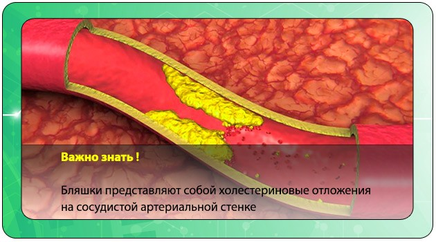 Бляшки при атеросклерозе сосудов