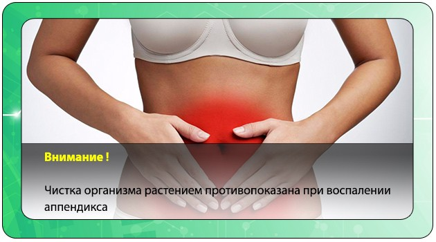 Воспаление аппендицита