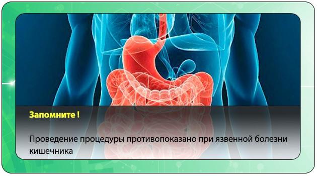Язвенная болезнь кишечника