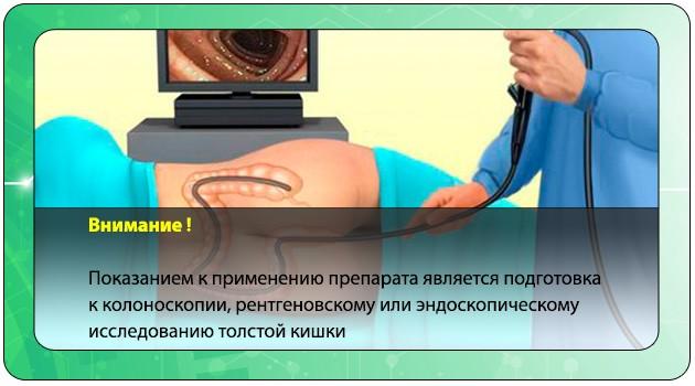 Эндоскопическое исследование кишечника