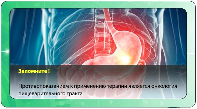 Онкология пищеварительного тракта