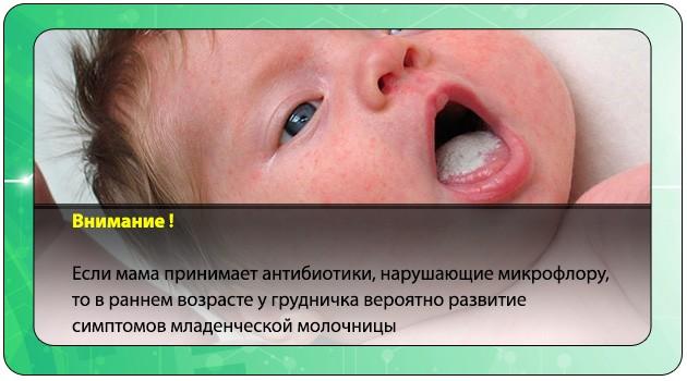 Младенческая молочница