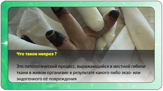 Некроз