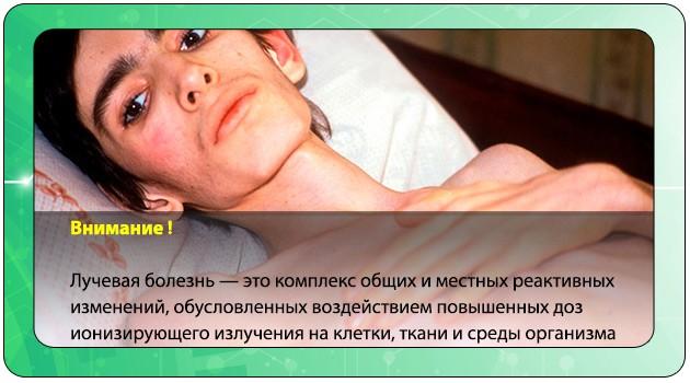 Лучевая болезнь