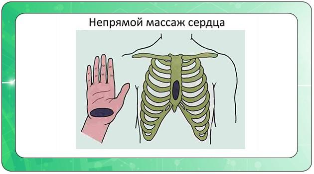 Правило проведения непрямого массажа сердца