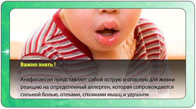 Анафилаксия у ребенка после Фуразолидона