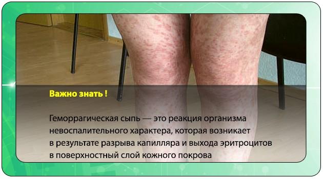 Геморрагическая сыпь
