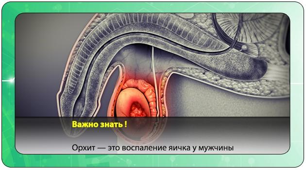 Орхит яичка